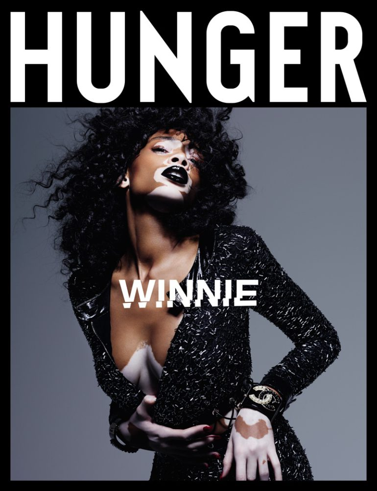 winnie-harlow-hunger-magazine-2016-photos01-1