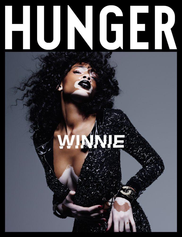 winnie-harlow-hunger-magazine-2016-photos01-1
